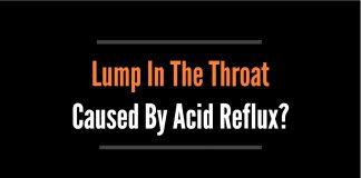 lump in throat feeling acid reflux