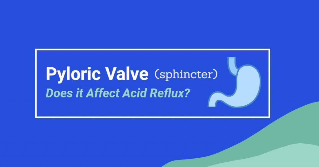 pyloric valve